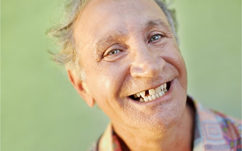 Smiling older man with a missing front tooth